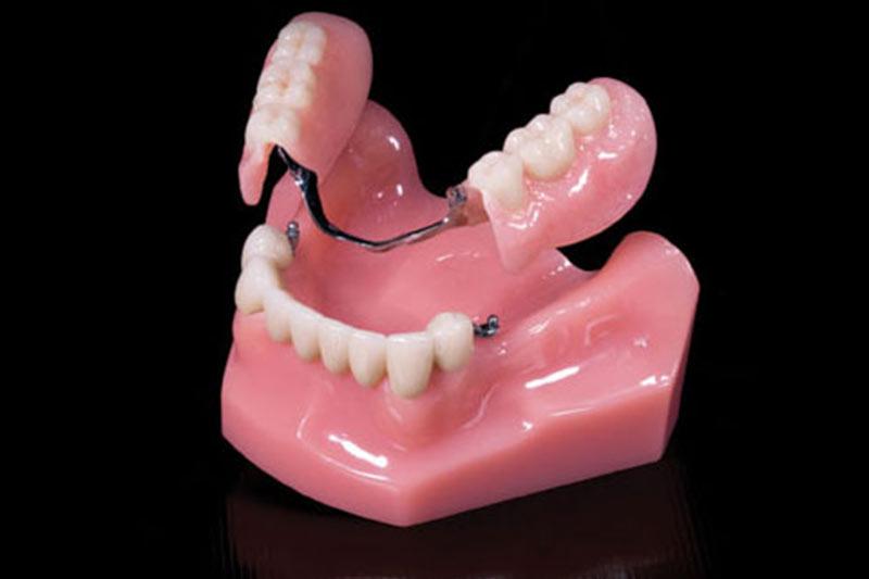 protesi attacci corone in ceramica